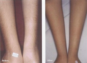permanent_laser_hair_removal_legs